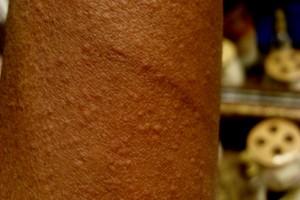 Cholinergic Urticaria Image