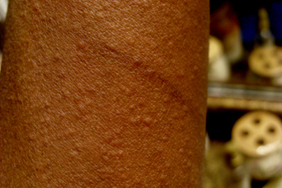 how to get rid of dry skin after hives