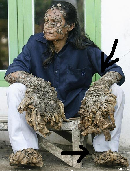warts tree man Amazing   Hives Remedy Skin