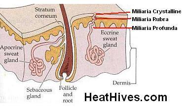 cholinergic urticaria sweat gland obstruction. Black Bedroom Furniture Sets. Home Design Ideas
